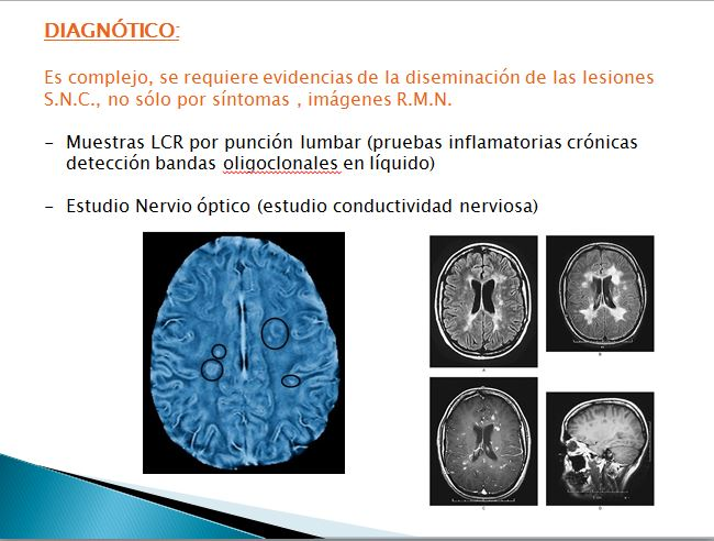 diagnóstico esclerosis