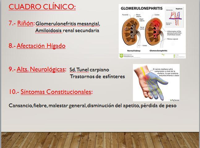 cuadro clinico artritis