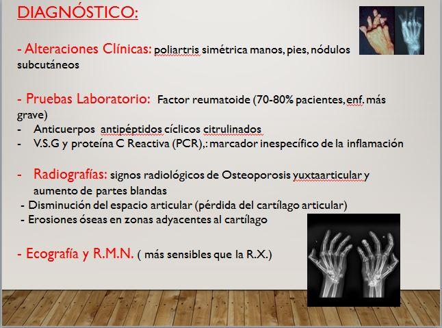 diagnóstico reumatoide