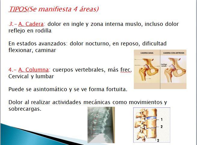 áreas con artrosis