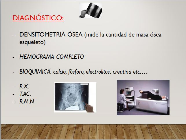 diagnóstico osteoporosis
